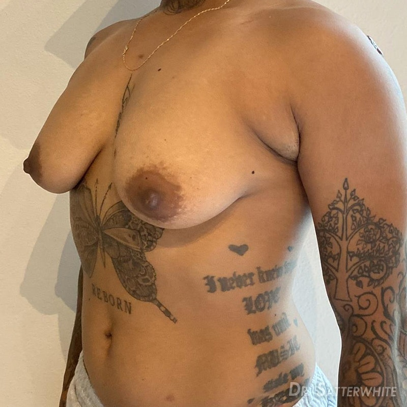 Non Binary Top Surgery Before and After | Align Surgical Associates, Inc.