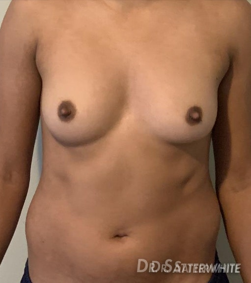 Top Surgery Satterwhite Before and After | Align Surgical Associates, Inc.